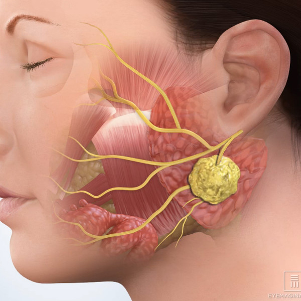 Parotidectomy   ENT Kerimis Clinic Ears,Nose, and Throat in